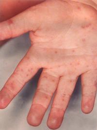små röda prickar under huden