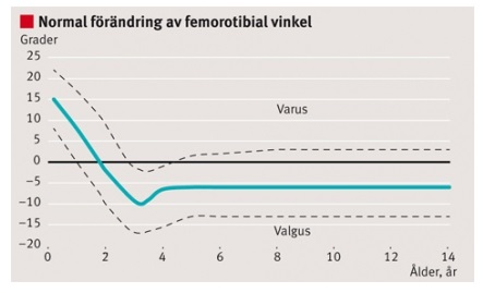Normal förändring av femorotibial vinkel