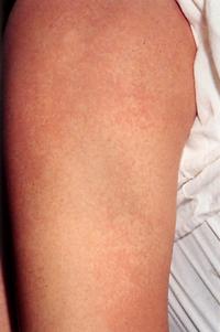knottrig hud armar